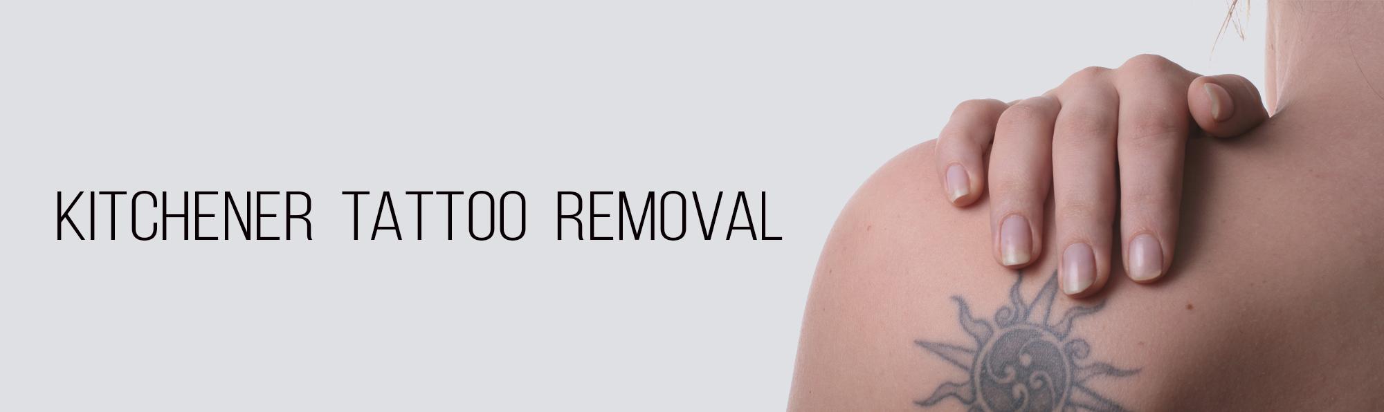 Kitchener Tattoo Removal