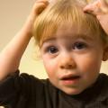 The Lowdown on Head Lice